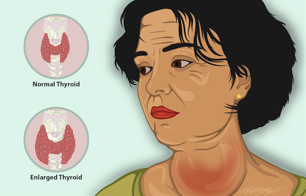 a diagram explaining what a large goiter looks like